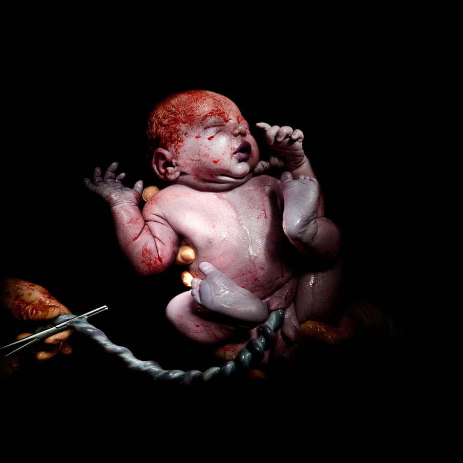 Gloved hand cutting the umbilical cord of a bloody newborn baby with it's eyes closed, being held by gloved hands; against black background.