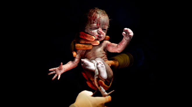 Gloved hands holding upright still bloody newborn baby, umbilical cord still attached; against black background.