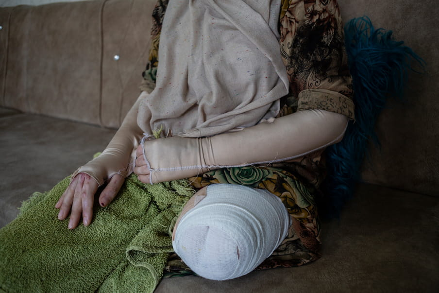 Photograph of the centre part of a woman's body with bandages. Left leg is amputated.