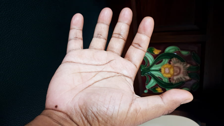 A picture of the author's outstretched palm