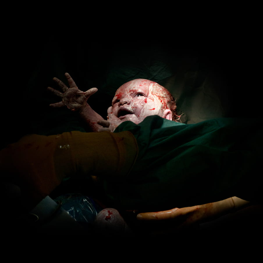 A bloody newborn baby reaching out his hand, coming from behind a green surgical blanket. Gloved hands hold the baby.