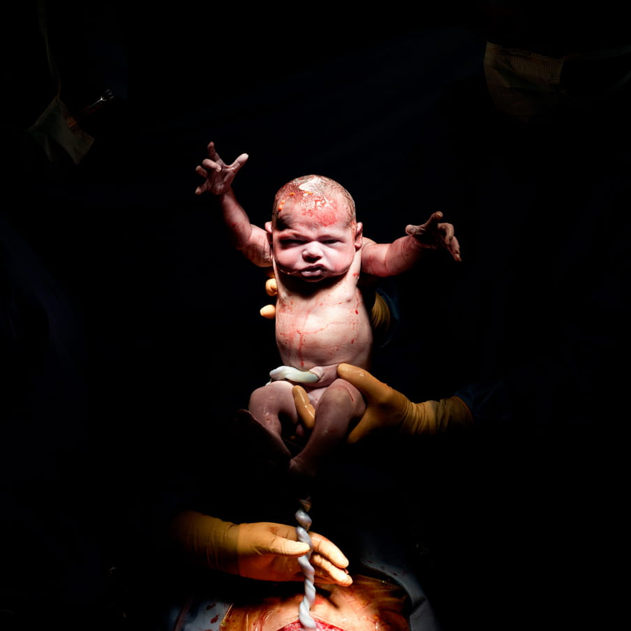 Gloved hands holding upright a still bloody newborn baby coming from an caesarian section, umbilical cord still attached and held by a gloved hand; against black background.